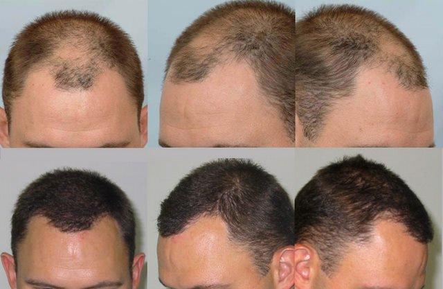 hårtransplantation resultater